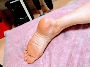 男性シュガーリング体験者(足のかかと)